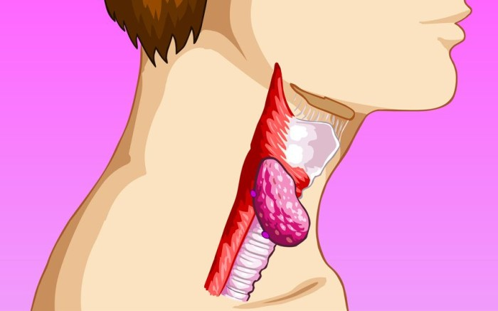 Признаки рака горла
