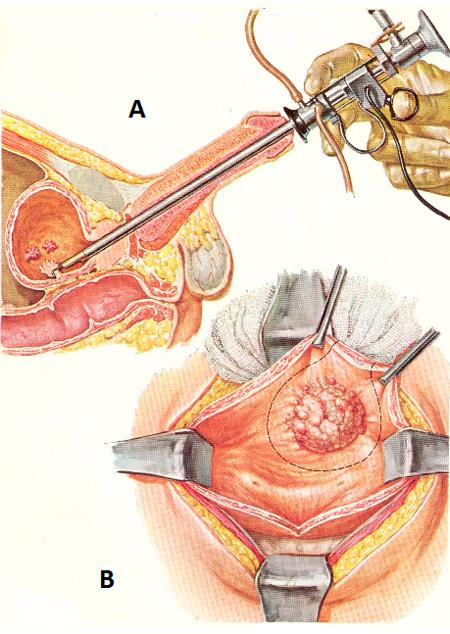 Операция на мочевом пузыре у мужчин