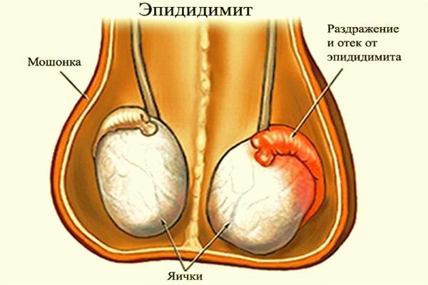 Заболевание мужских яичек