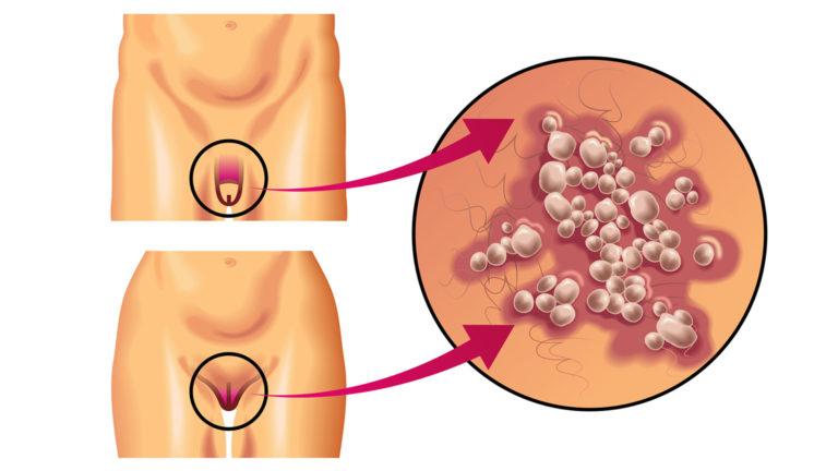 Женские и мужские болезни