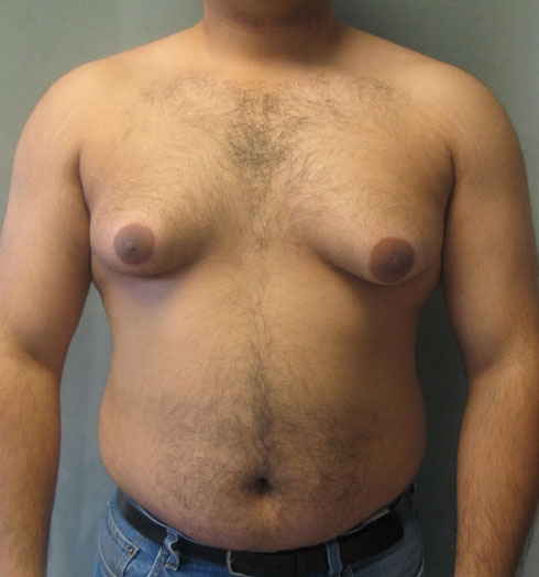 Женская грудь у мужчины