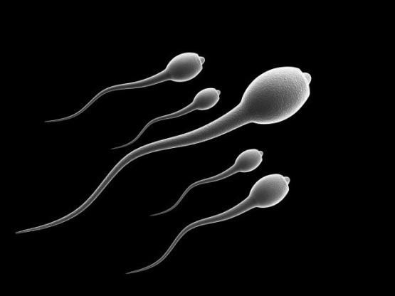 Белые сперматозоиды