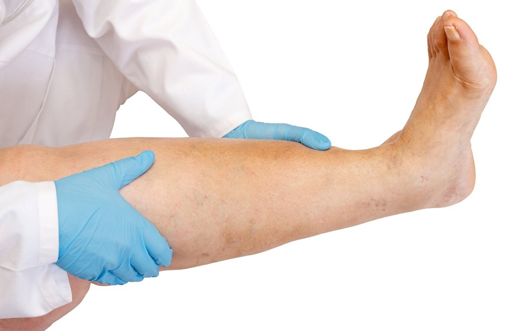 Руки врача и нога пациента