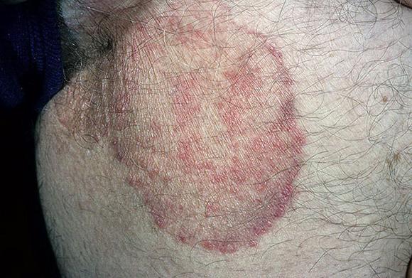 Эпидермофития паховая фото у мужчин