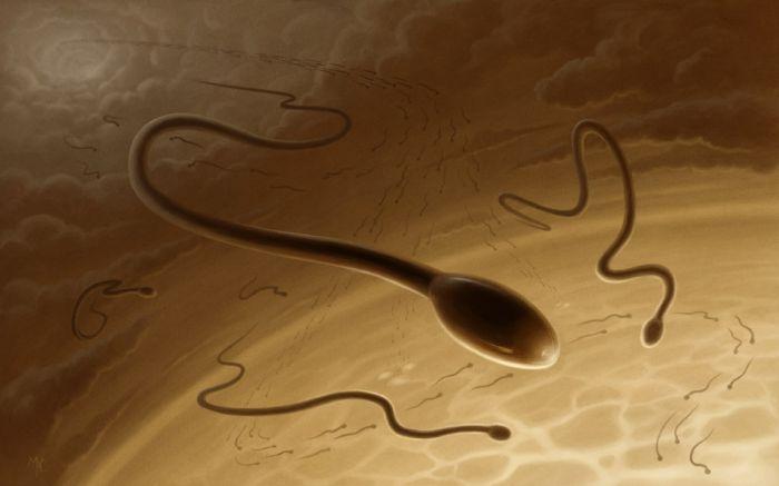 Пиоспермия что это такое и как лечить видео