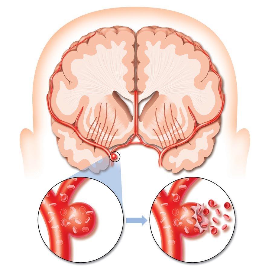 Разрыв сосуда в мозгу