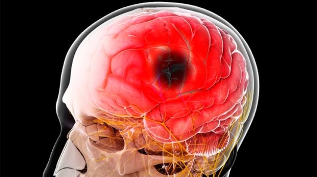 Череп и мозг с черным пятном
