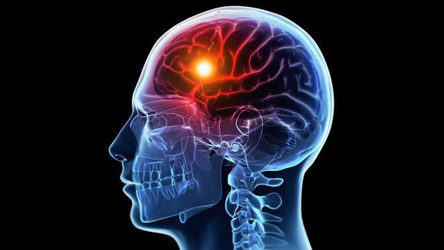 Голова, мозг и оранжевая точка