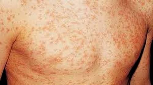 Сыпь от СПИДа у мужчин