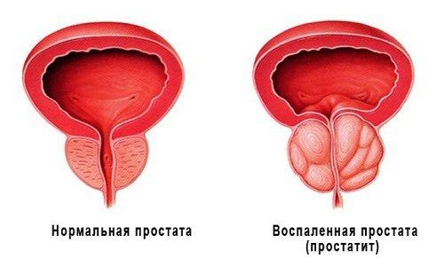 Нормальна и воспаленная простата